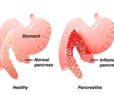Pankreas iltihabı neden olur?