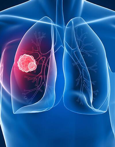 Her gün  450 kişiye kanser teşhisi konuyor
