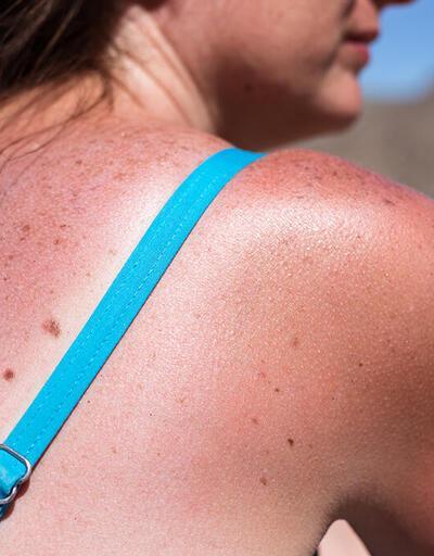 Güneş yanığı nedir? Güneş yanığı nasıl tedavi edilir?