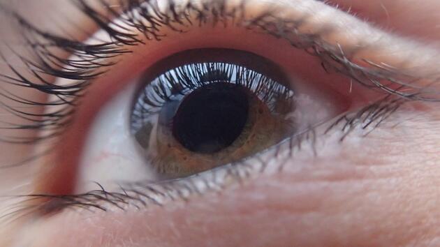 Göz alerjisi nelere yol açar?