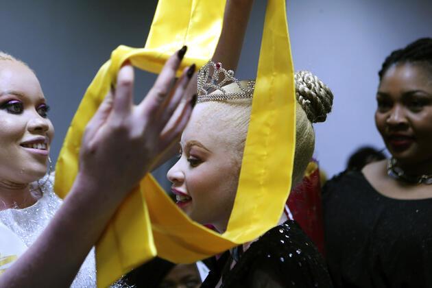Zimbabwe'de albino güzellik yarışması! 'Cadı' değil 'güzeliz'