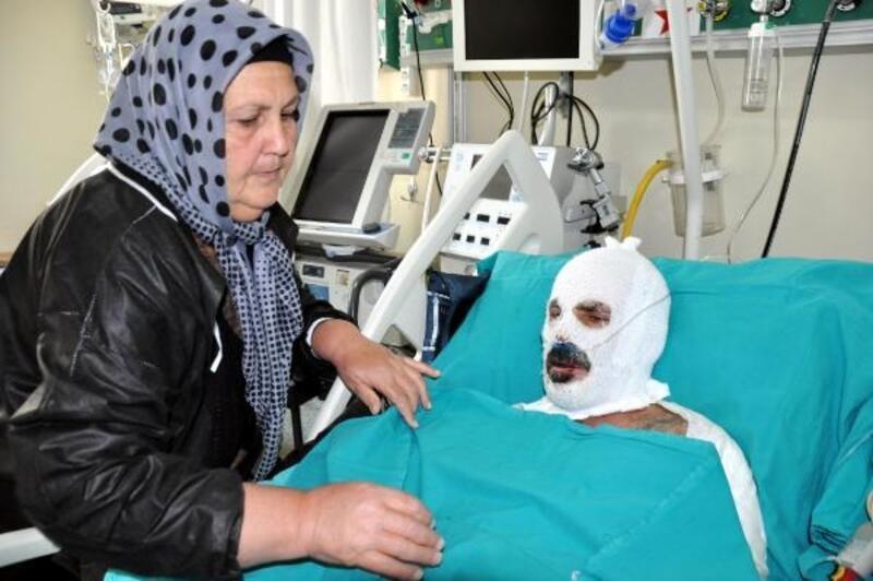 Nahcivan'da yandı, Erzurum'da tedavi görüyor